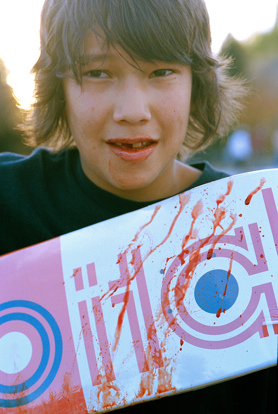bleeding-kid-tooth-knocked-out-saskatoon-2008-retouch-adjust.jpg